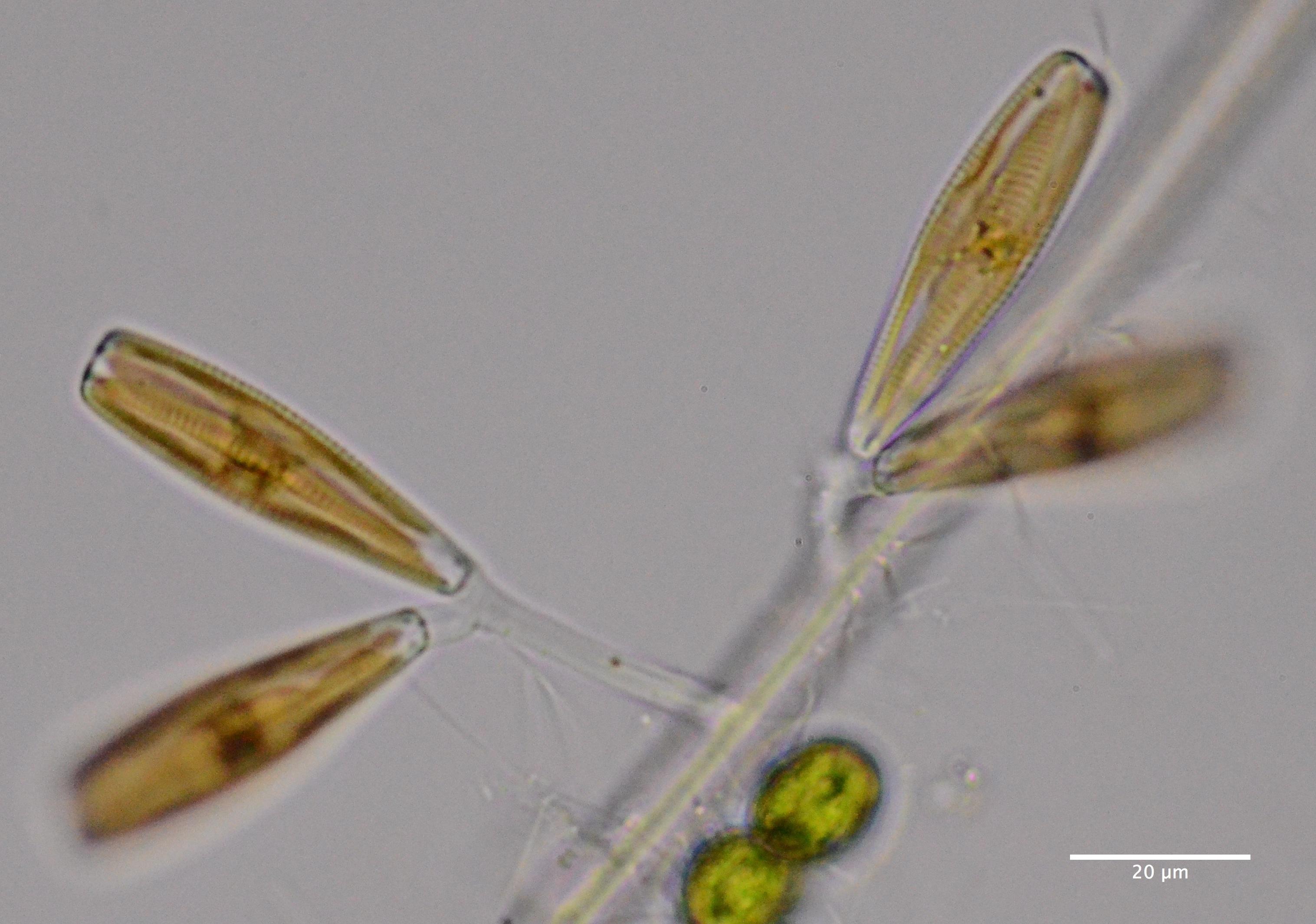 Stalked Diatoms Dsc