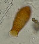 vase testate amoeba 1 P1030688