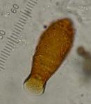 vase testate amoeba 2 P1030689