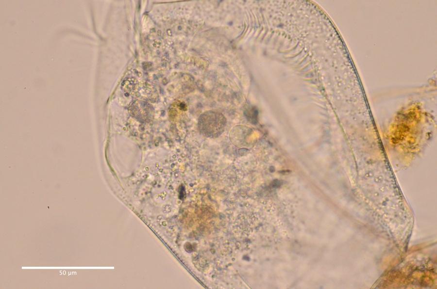 Euplotes cf woodruffi contractile vacuole DSC_2424 ...